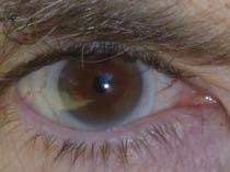 Scleral lens in my eye